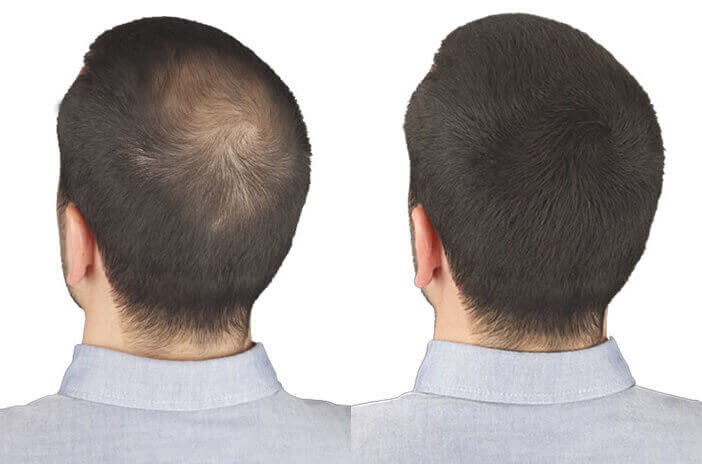 Haare verdichten pulver